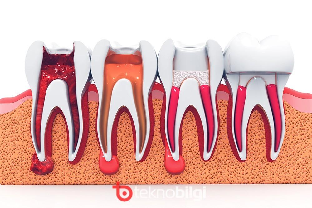 , Kanal Tedavili Diş Çürür Mü?